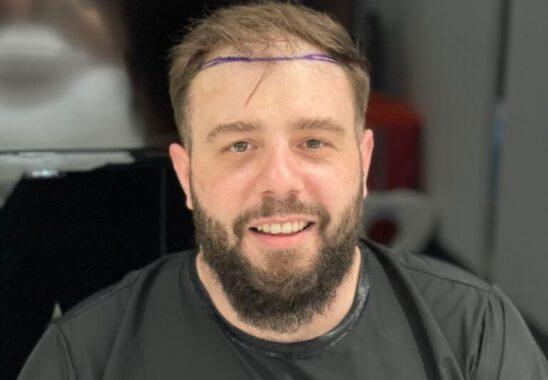 Saç Ekimi Tedavi Merkezleri